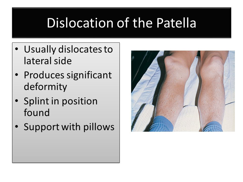 Dislocation of the Patella Usually dislocates to lateral side Produces significant deformity Splint in position found Support with pillows Usually dis