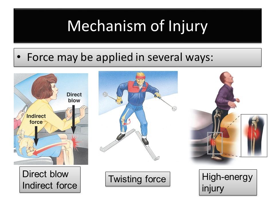 Severe Life-Threatening Injuries (Survival Is Probable) Multiple closed fractures Limb amputations Fractures of both long bones on the leg (bilateral femur fractures) Multiple closed fractures Limb amputations Fractures of both long bones on the leg (bilateral femur fractures)