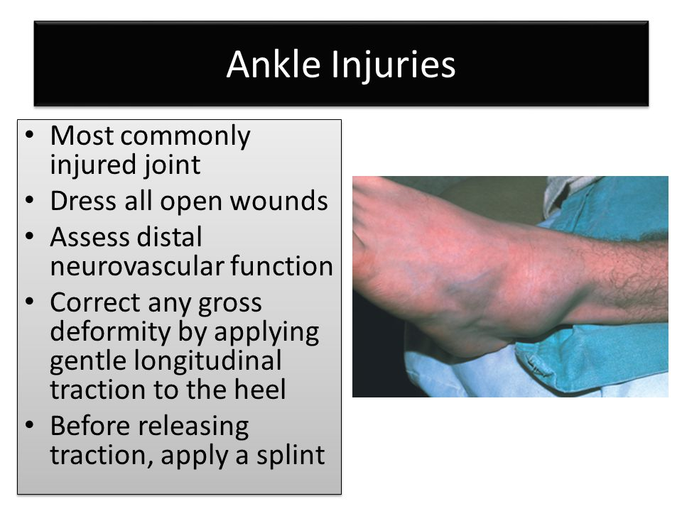 Ankle Injuries Most commonly injured joint Dress all open wounds Assess distal neurovascular function Correct any gross deformity by applying gentle l