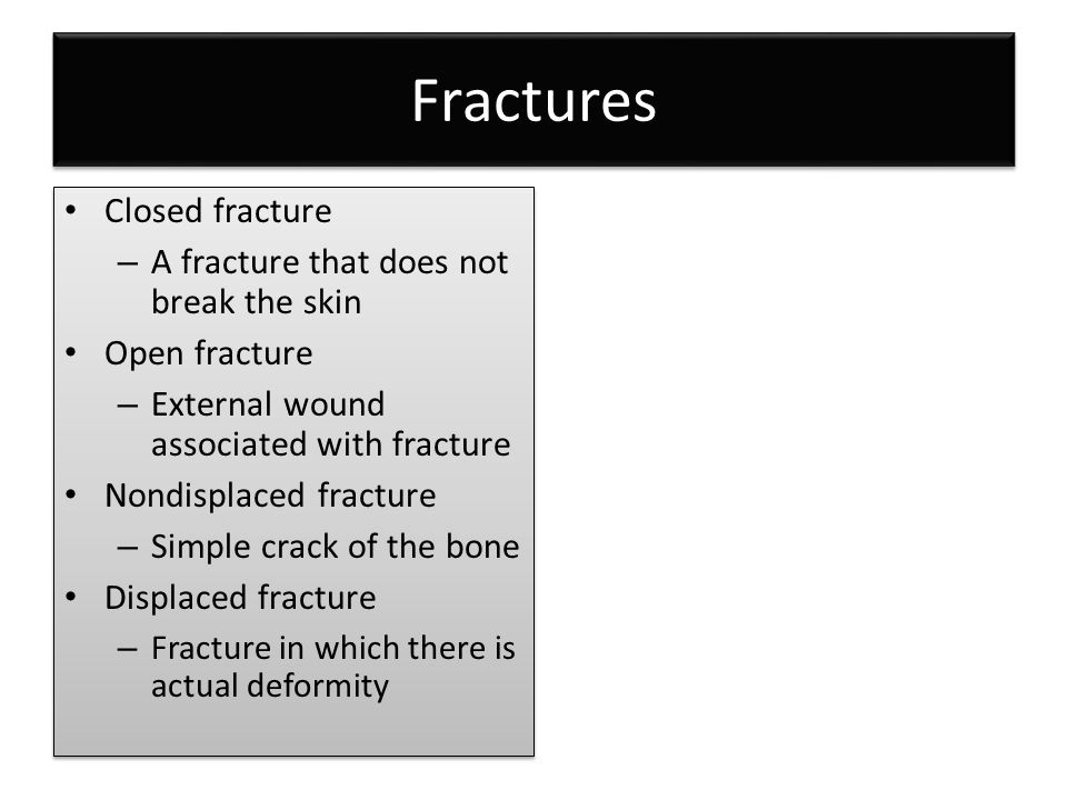 Fractures Closed fracture – A fracture that does not break the skin Open fracture – External wound associated with fracture Nondisplaced fracture – Si