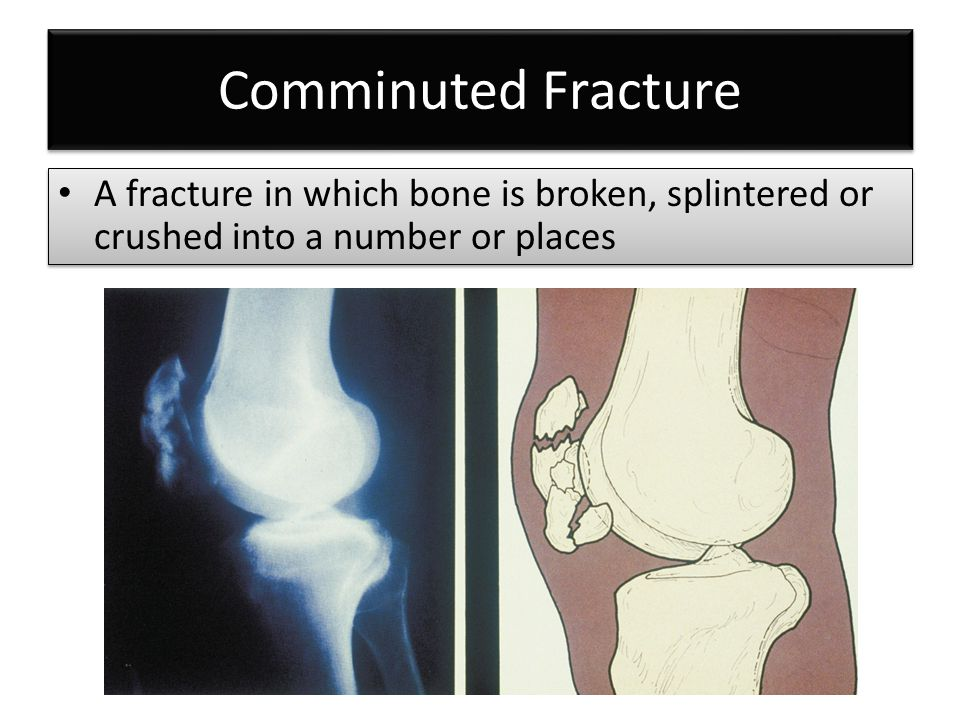 Comminuted Fracture A fracture in which bone is broken, splintered or crushed into a number or places
