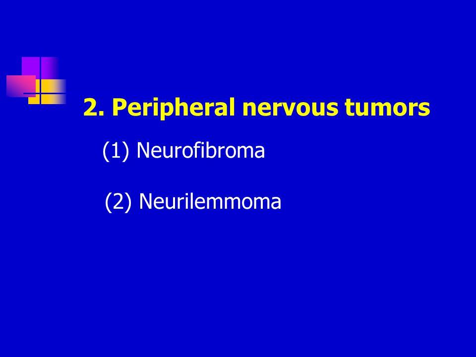2. Peripheral nervous tumors (1) Neurofibroma (2) Neurilemmoma