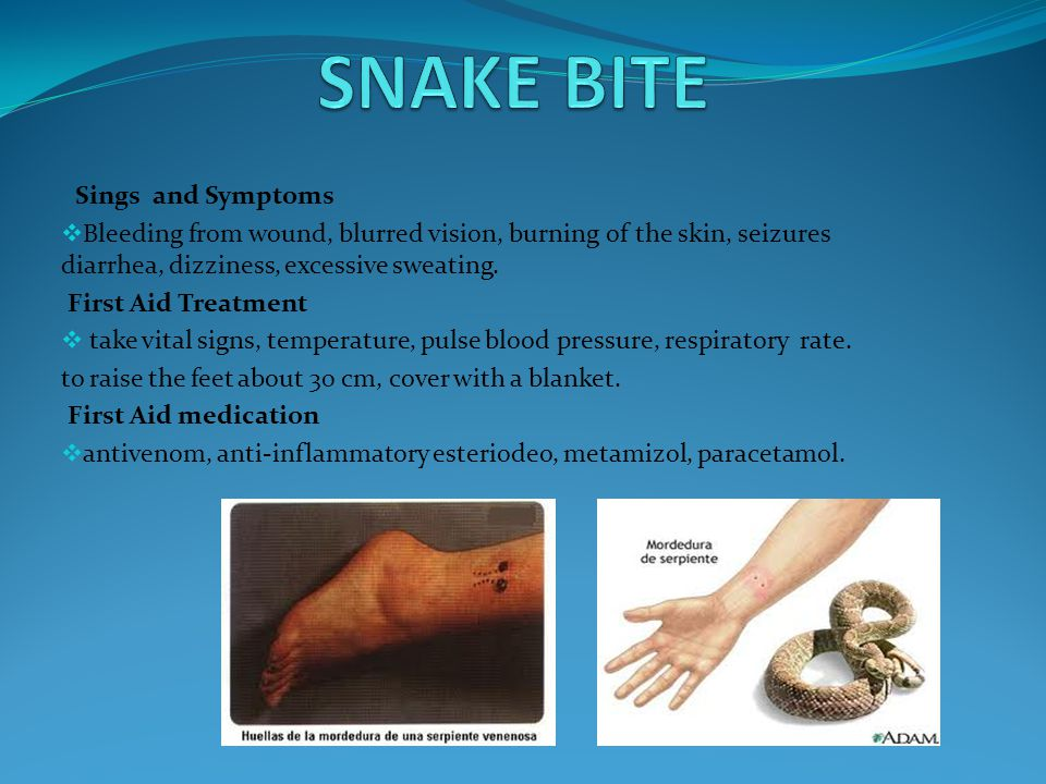 Signs and Symptoms  pain, heat, swelling,sensitivity,fever,brusing.