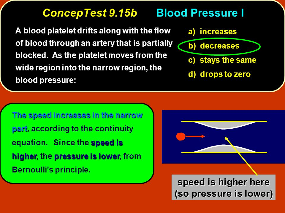 Thespeed increases in the narrow part speed is higherpressure is lower The speed increases in the narrow part, according to the continuity equation. S