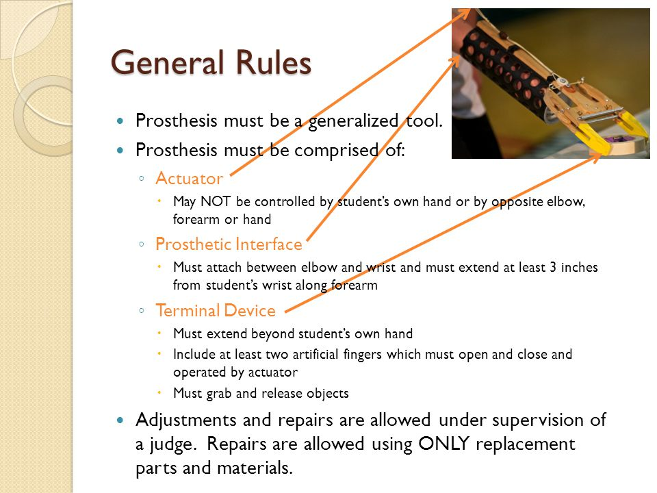 General Rules Prosthesis must be a generalized tool. Prosthesis must be comprised of: ◦ Actuator  May NOT be controlled by student's own hand or by o