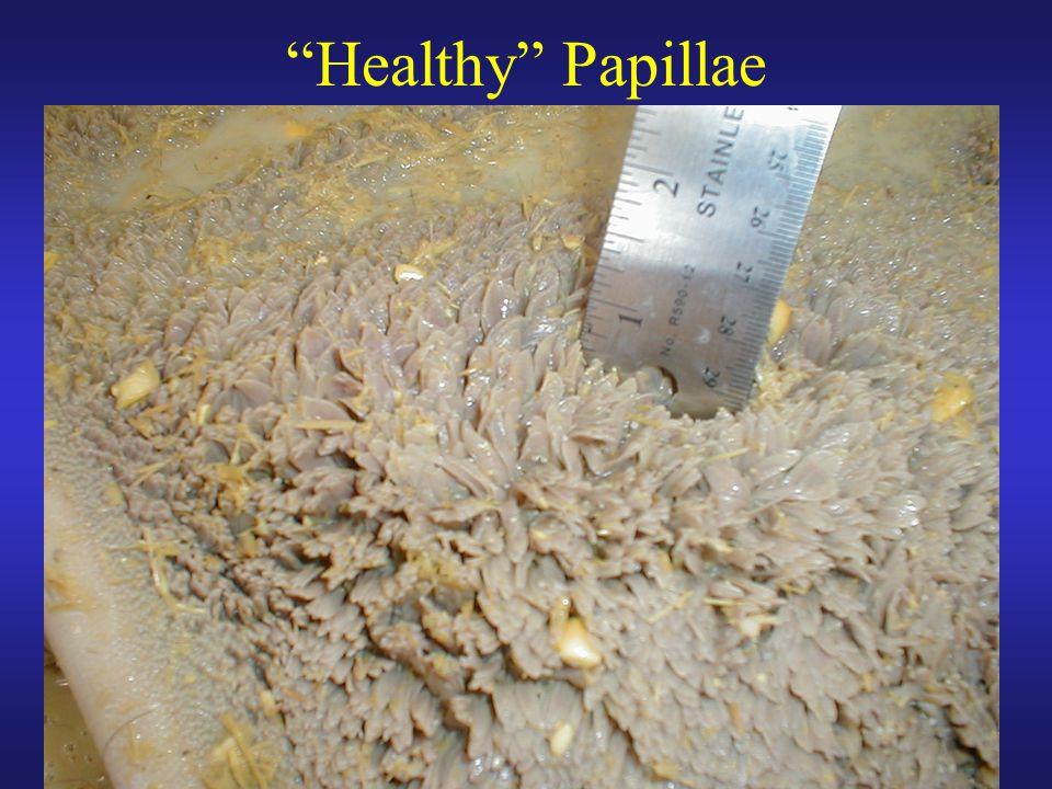"""Healthy"" Papillae"