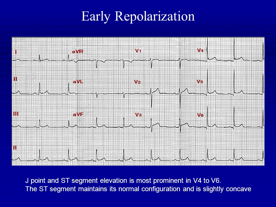 Early Repolarization J point and ST segment elevation is most prominent in V4 to V6. The ST segment maintains its normal configuration and is slightly