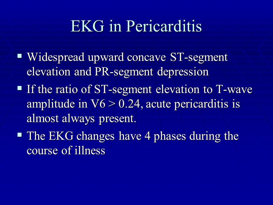EKG in Pericarditis  Widespread upward concave ST-segment elevation and PR-segment depression  If the ratio of ST-segment elevation to T-wave amplit