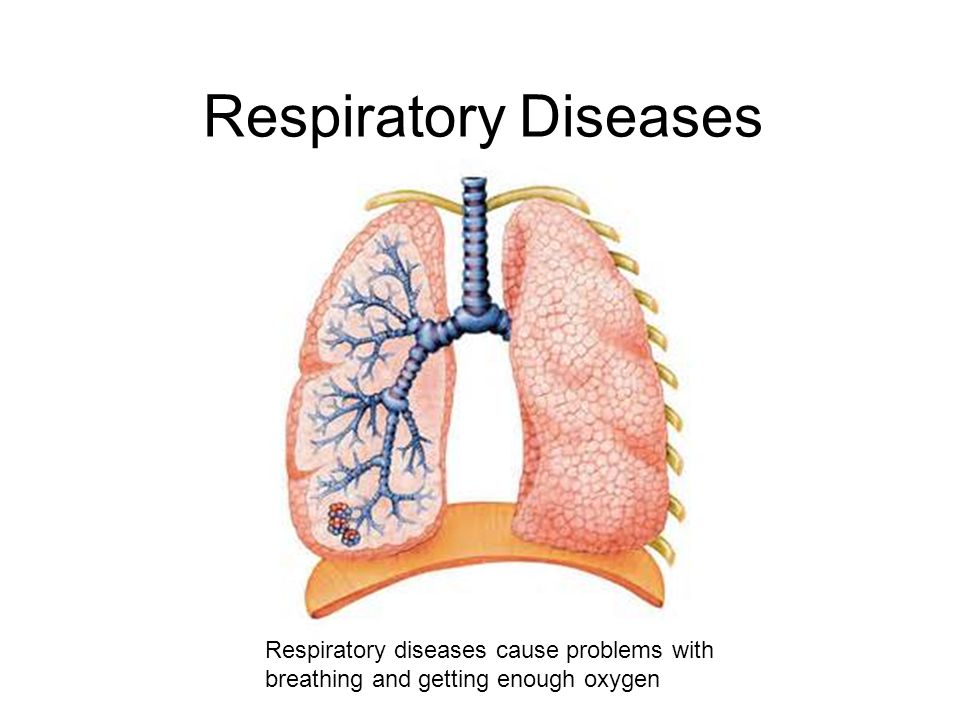 Respiratory Diseases Respiratory diseases cause problems with breathing and getting enough oxygen