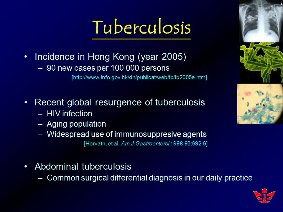 Tuberculosis Incidence in Hong Kong (year 2005) –90 new cases per 100 000 persons [http://www.info.gov.hk/dh/publicat/web/tb/tb2005e.htm] Recent globa