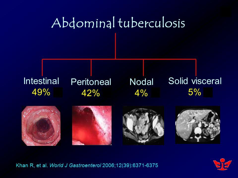 Intestinal 49% Peritoneal 42% Nodal 4% Solid visceral 5% Abdominal tuberculosis Khan R, et al.