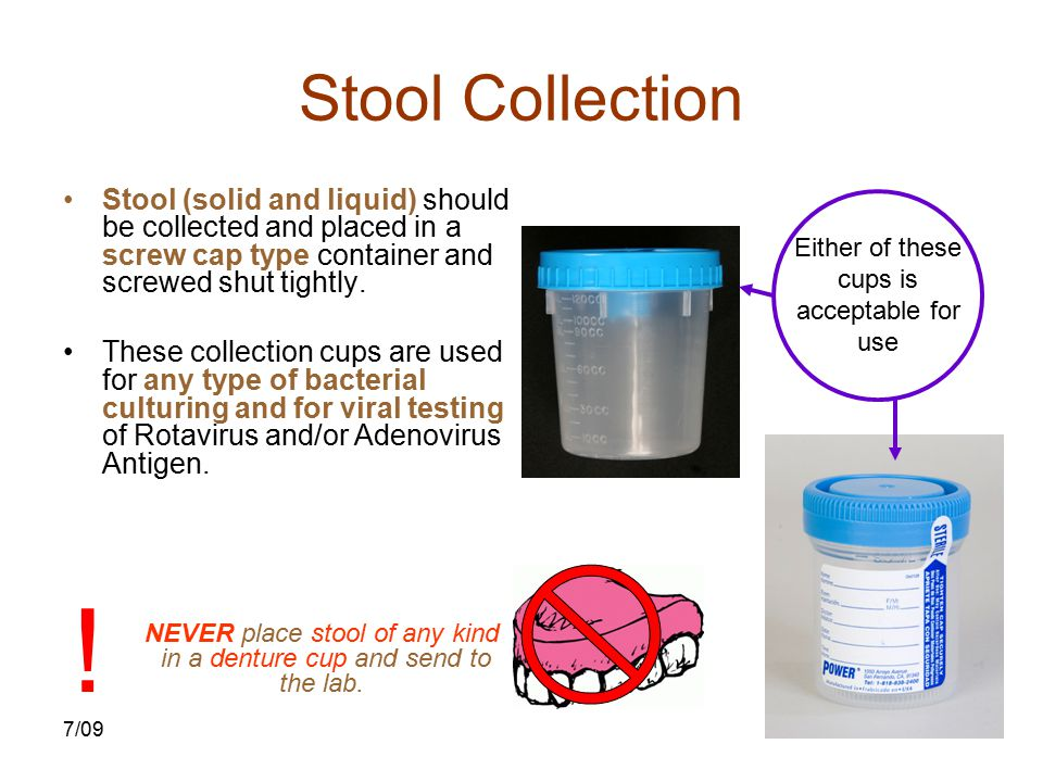 7/0915 Stool Collection Stool (solid and liquid) should be collected and placed in a screw cap type container and screwed shut tightly. These collecti