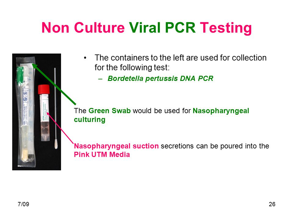 7/0926 Non Culture Viral PCR Testing The containers to the left are used for collection for the following test: –Bordetella pertussis DNA PCR The Gree
