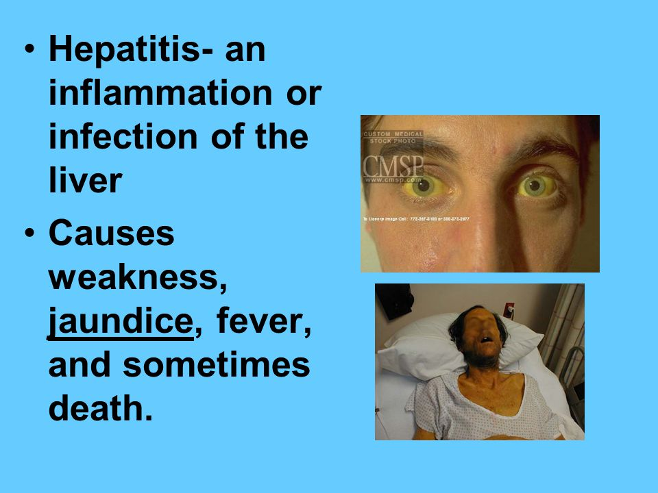 Hepatitis- an inflammation or infection of the liver Causes weakness, jaundice, fever, and sometimes death.