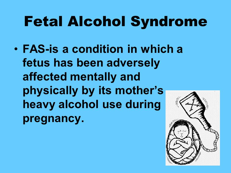 Fetal Alcohol Syndrome FAS-is a condition in which a fetus has been adversely affected mentally and physically by its mother's heavy alcohol use during pregnancy.
