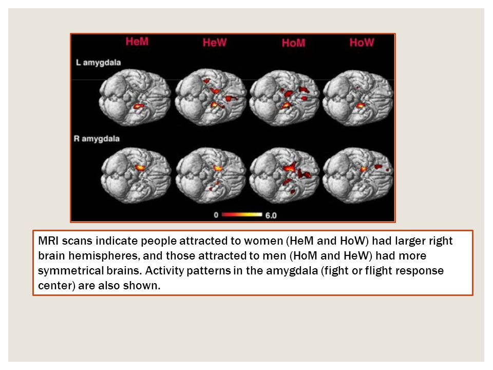 MRI scans indicate people attracted to women (HeM and HoW) had larger right brain hemispheres, and those attracted to men (HoM and HeW) had more symme