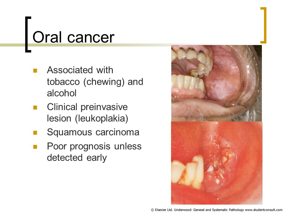 Sites of oral cancer Floor of mouth Side of tongue Palate Back of tongue