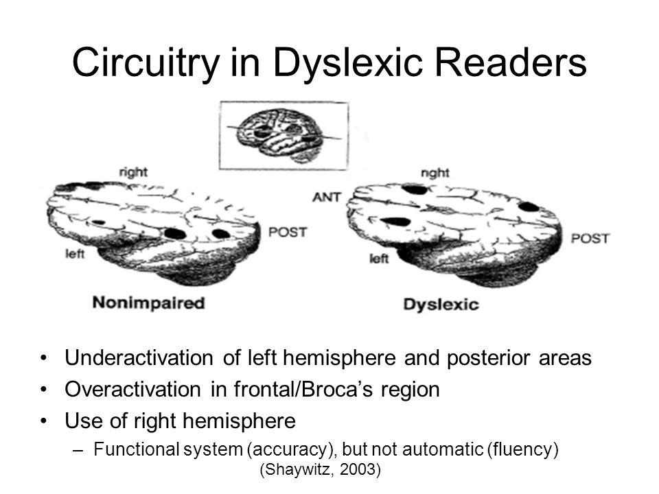 Circuitry in Dyslexic Readers Underactivation of left hemisphere and posterior areas Overactivation in frontal/Broca's region Use of right hemisphere