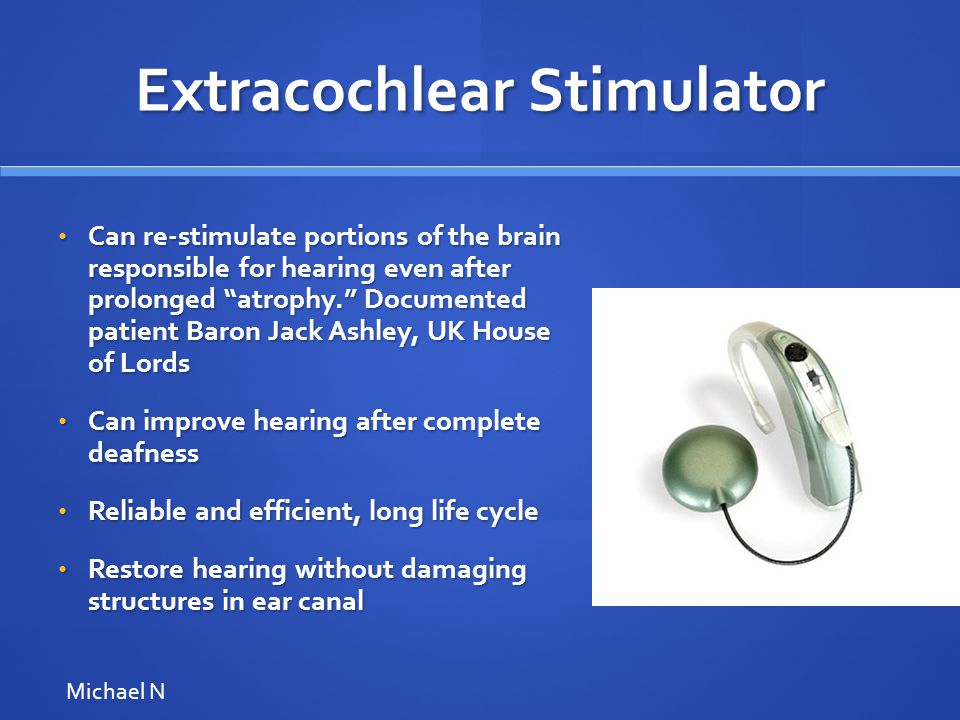 Extracochlear Stimulator Can re-stimulate portions of the brain responsible for hearing even after prolonged atrophy. Documented patient Baron Jack Ashley, UK House of Lords Can re-stimulate portions of the brain responsible for hearing even after prolonged atrophy. Documented patient Baron Jack Ashley, UK House of Lords Can improve hearing after complete deafness Can improve hearing after complete deafness Reliable and efficient, long life cycle Reliable and efficient, long life cycle Restore hearing without damaging structures in ear canal Restore hearing without damaging structures in ear canal Michael N