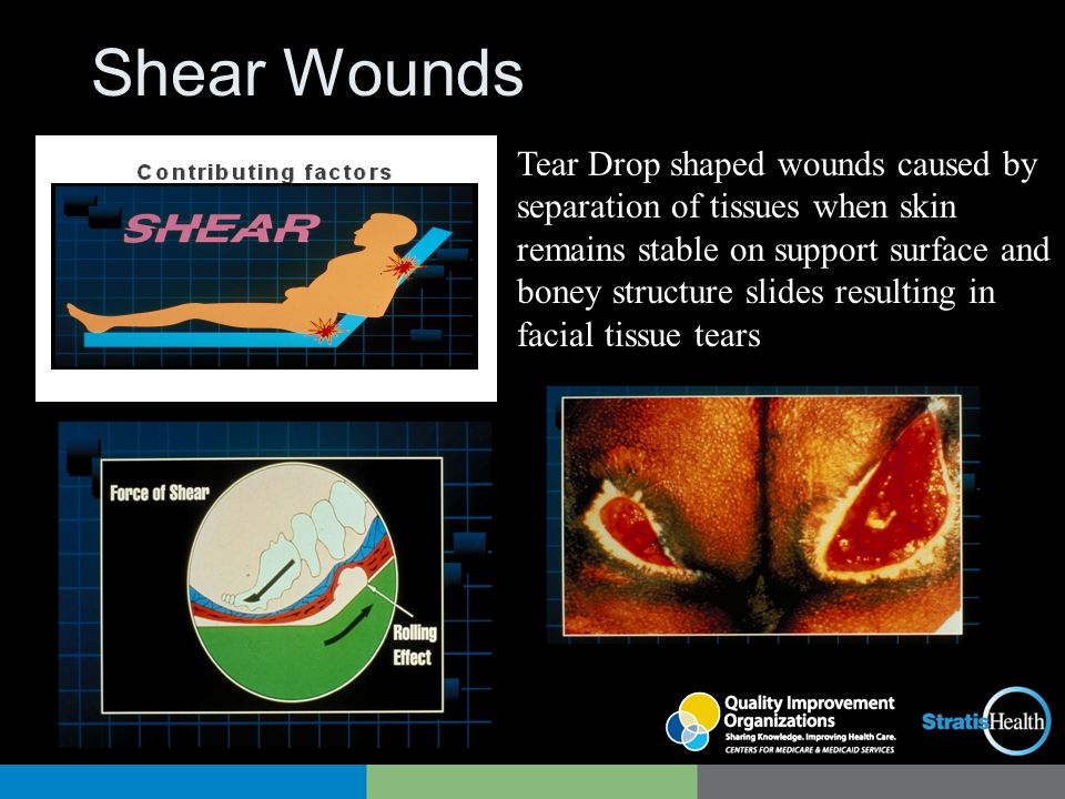 Shear Wounds Tear Drop shaped wounds caused by separation of tissues when skin remains stable on support surface and boney structure slides resulting