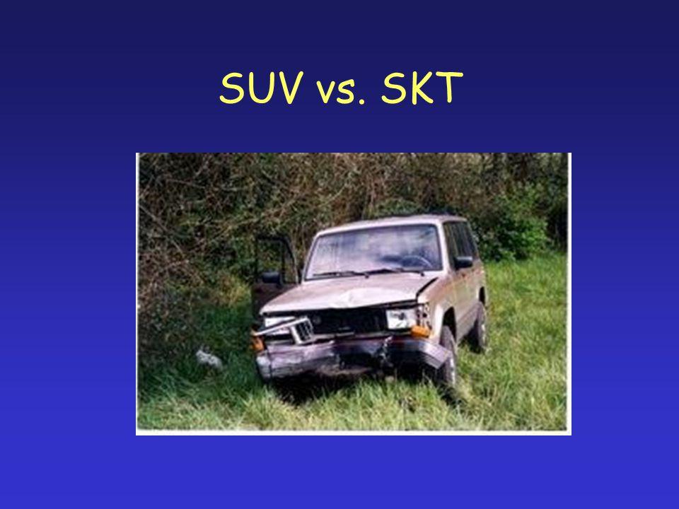 SUV vs. SKT