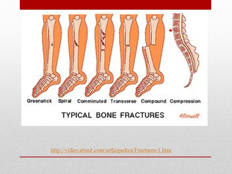 Injuries to joints Injuries to joints Can occur from overuse, strain, or disease.
