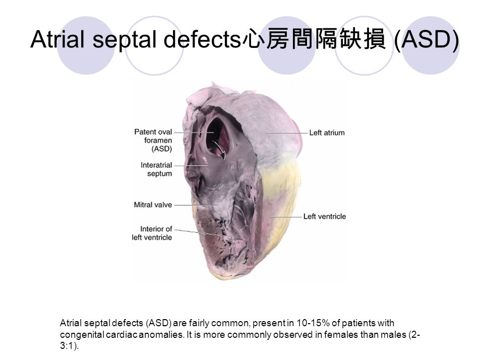 Atrial septal defects 心房間隔缺損 (ASD) Atrial septal defects (ASD) are fairly common, present in 10-15% of patients with congenital cardiac anomalies. It