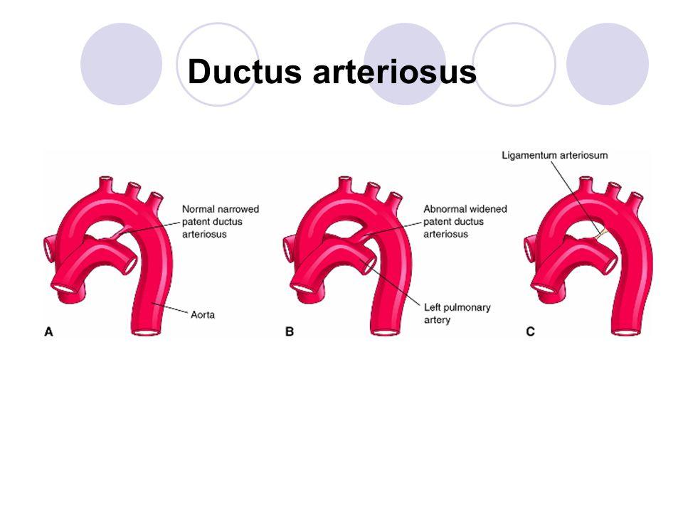 Patent ductus arteriosus Blue-pulmonary trunk; Red-aorta and tributaries; Green-patent ductus arteriosus