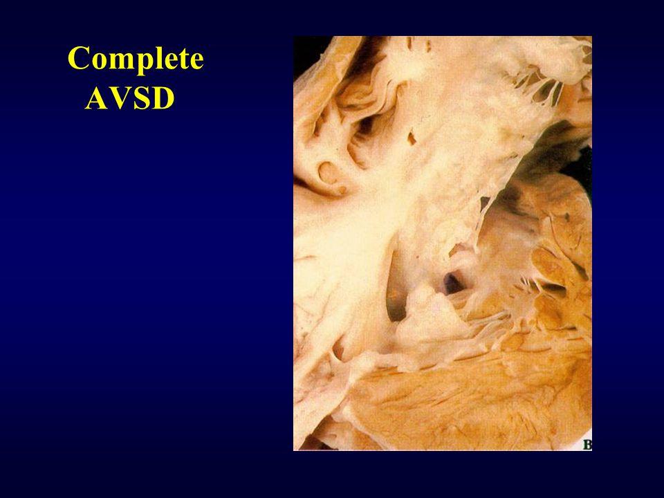 Complete AVSD