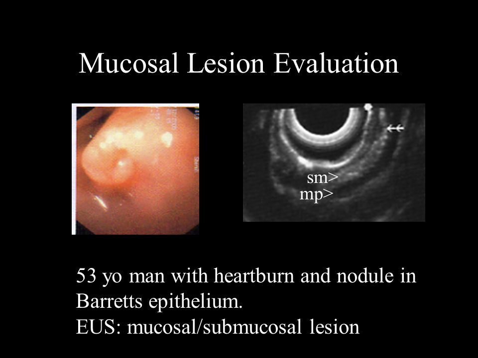Mucosal Lesion Evaluation 53 yo man with heartburn and nodule in Barretts epithelium. EUS: mucosal/submucosal lesion mp> sm>