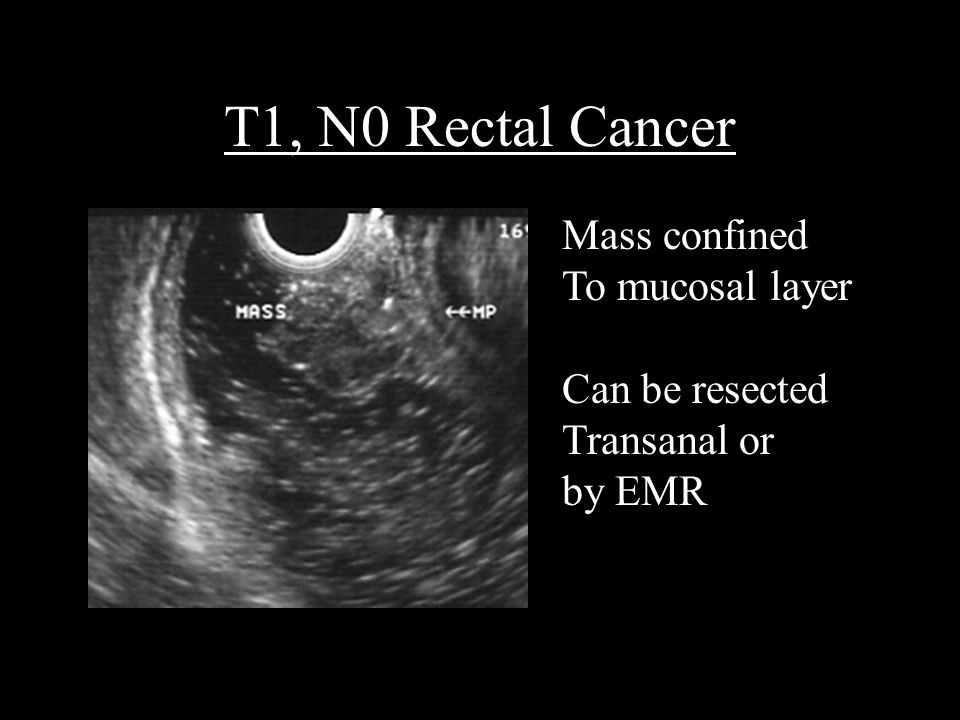 T1, N0 Rectal Cancer Mass confined To mucosal layer Can be resected Transanal or by EMR