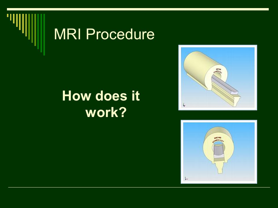 MRI Procedure How does it work