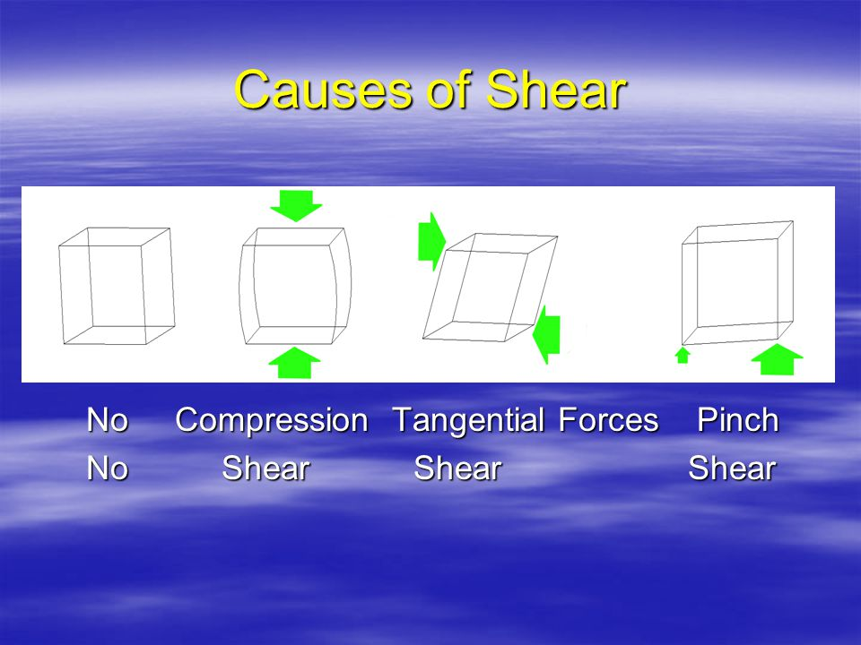 Causes of Shear No Compression Tangential Forces Pinch No Compression Tangential Forces Pinch No Shear Shear Shear No Shear Shear Shear