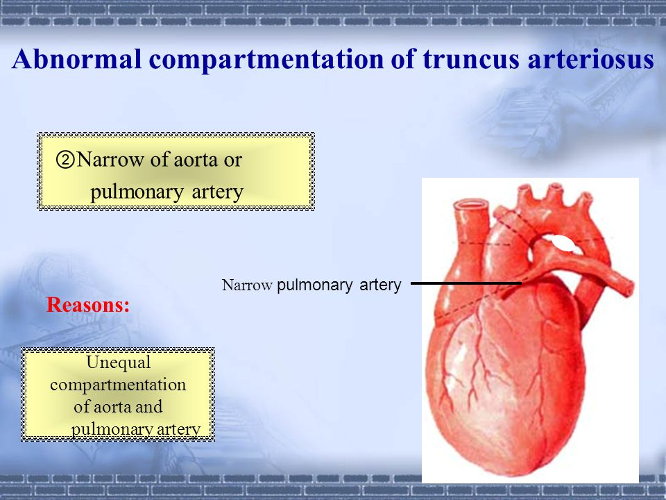 Abnormal compartmentation of truncus arteriosus Reasons: No spiral ① Incorrectly positioned of aorta and pulmonary artery Right ventricle Left ventric