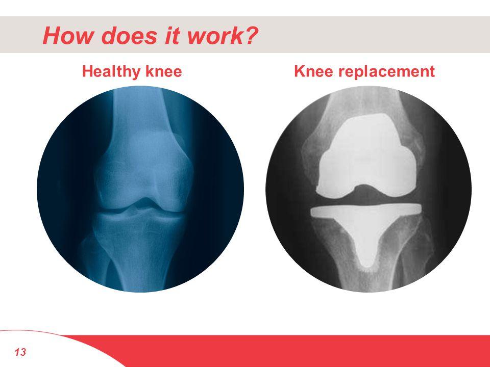 13 Healthy kneeKnee replacement How does it work?