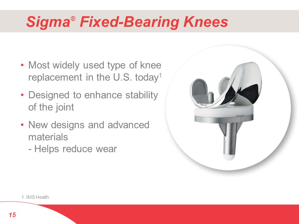 Sigma ® Fixed-Bearing Knees Most widely used type of knee replacement in the U.S. today 1 Designed to enhance stability of the joint New designs and a