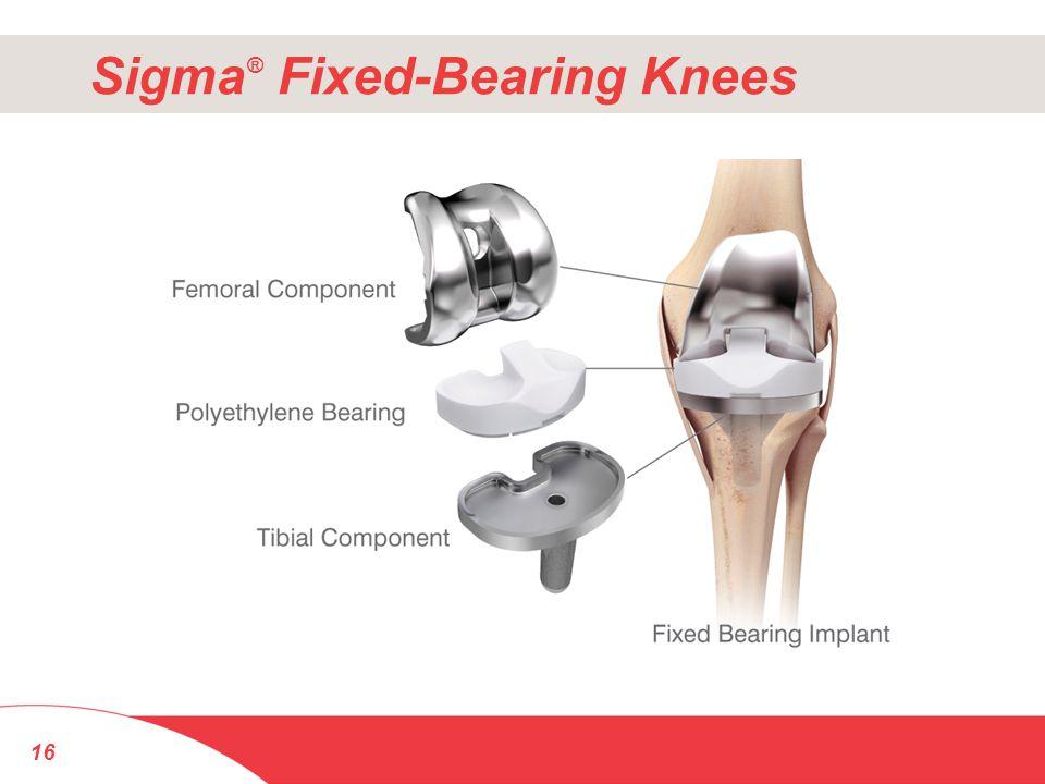 16 Sigma ® Fixed-Bearing Knees