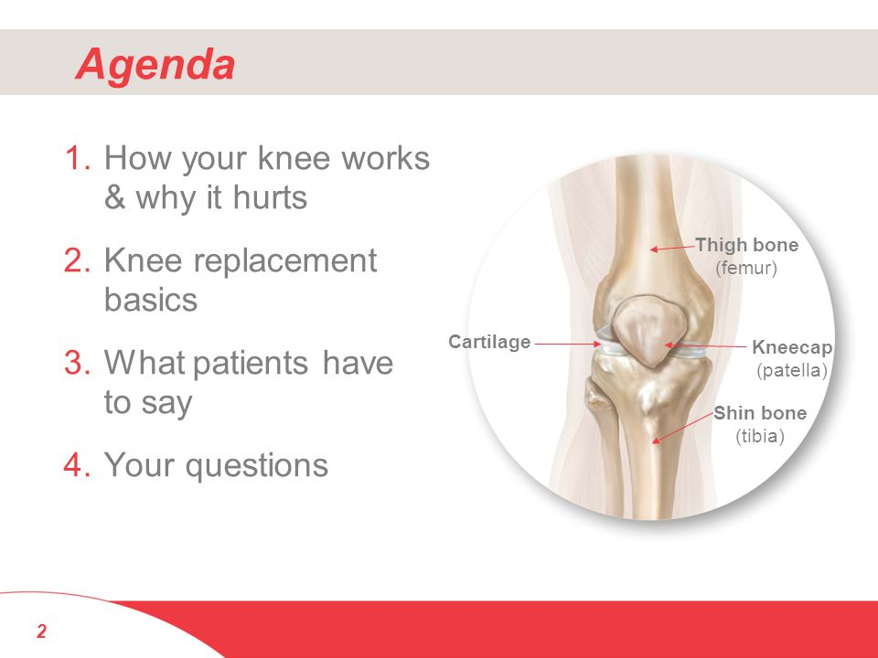 Agenda 1.How your knee works & why it hurts 2.Knee replacement basics 3.What patients have to say 4.Your questions 2 Thigh bone (femur) Cartilage Shin