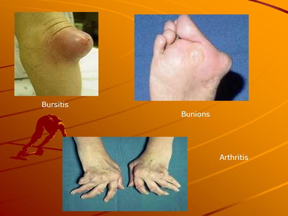 Bursitis Bunions Arthritis