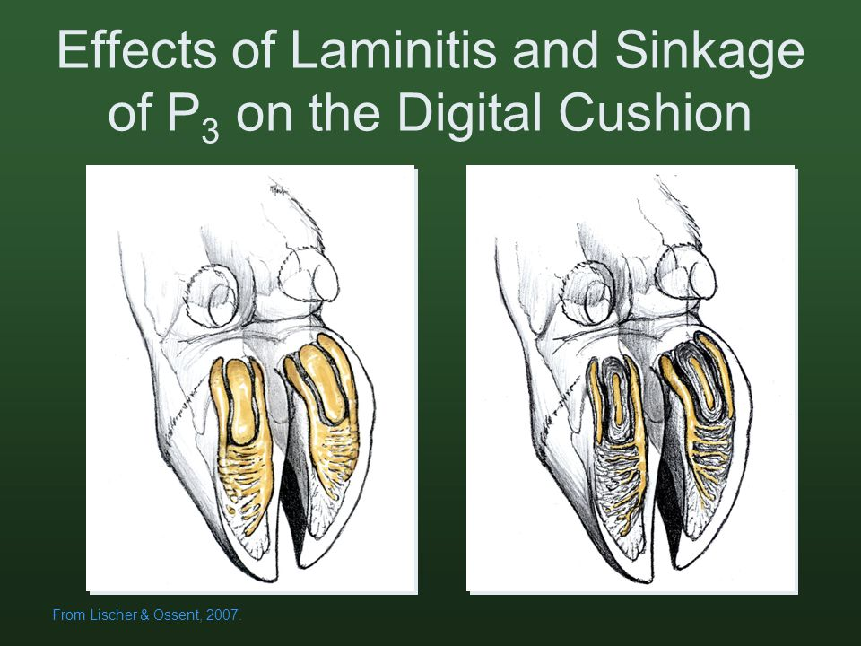 Effects of Laminitis and Sinkage of P 3 on the Digital Cushion From Lischer & Ossent, 2007.
