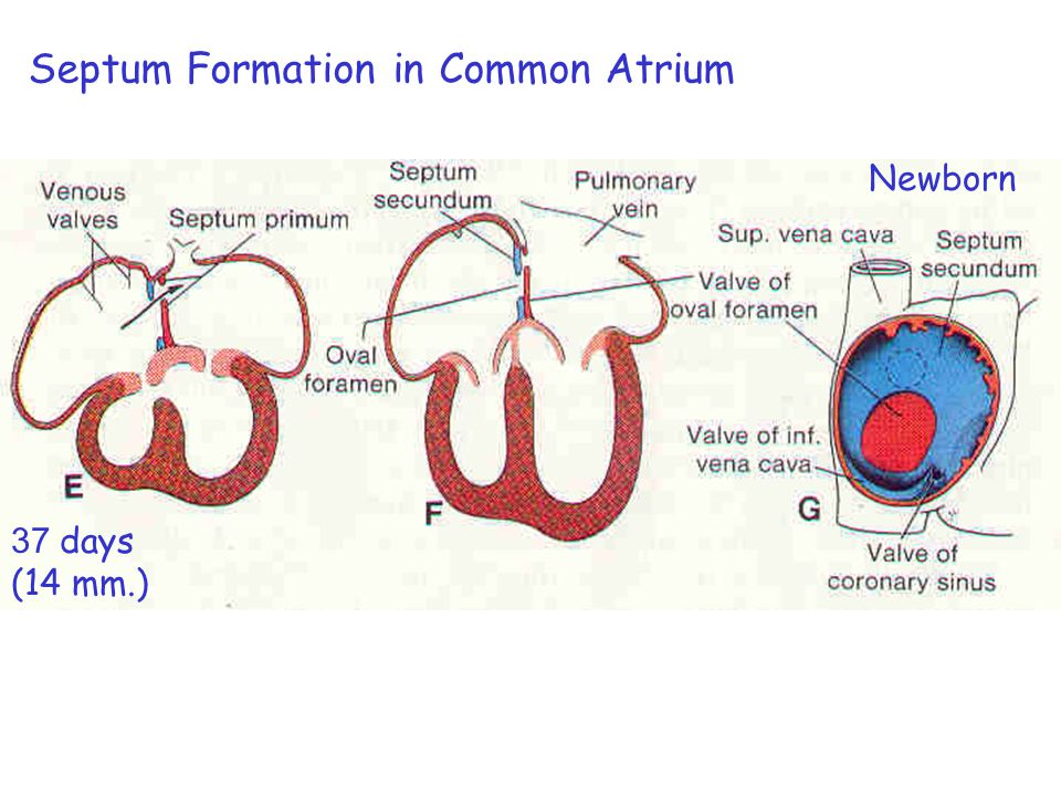 Septum Formation in Common Atrium 33 days(9 mm.) 1. Endocardial cushion extends to close Foramen primum. 2. Foramen (Ostium) secundum is formed. 3. Fu