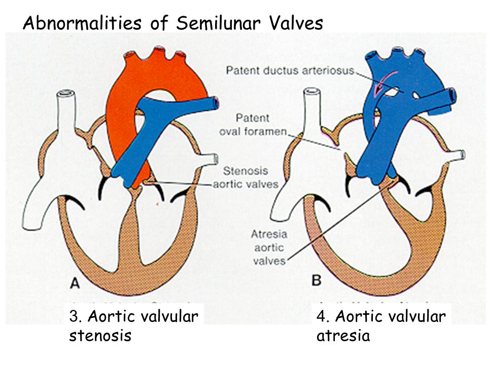 Abnormalities of Semilunar Valves 1. Transposition of great vessels 2. Pulmonary valvular stenosis