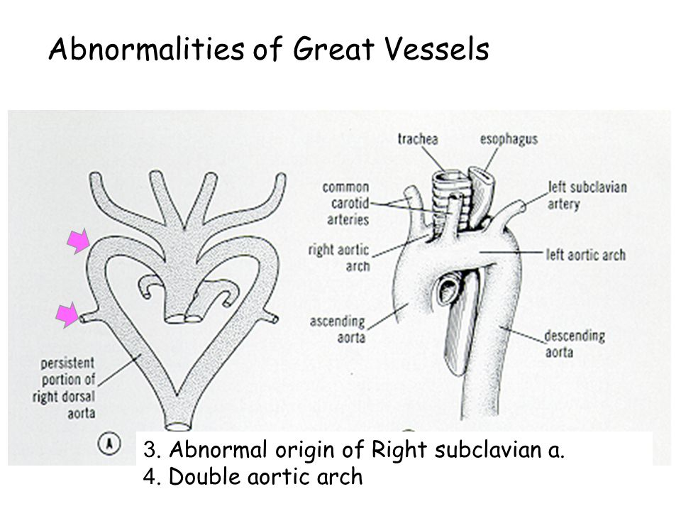 Abnormalities of Great Vessels 1. Patent ductus arteriosus 2. Preductal & Postductal coarctation of aorta