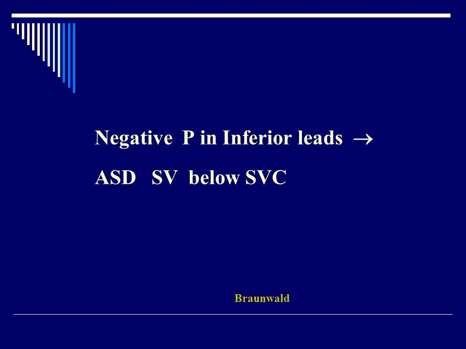 Negative P in Inferior leads  ASD SV below SVC Braunwald