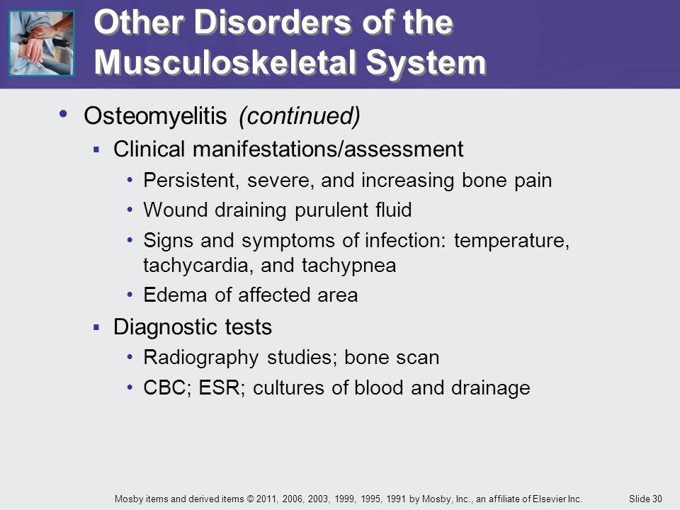 Slide 30Mosby items and derived items © 2011, 2006, 2003, 1999, 1995, 1991 by Mosby, Inc., an affiliate of Elsevier Inc. Other Disorders of the Muscul