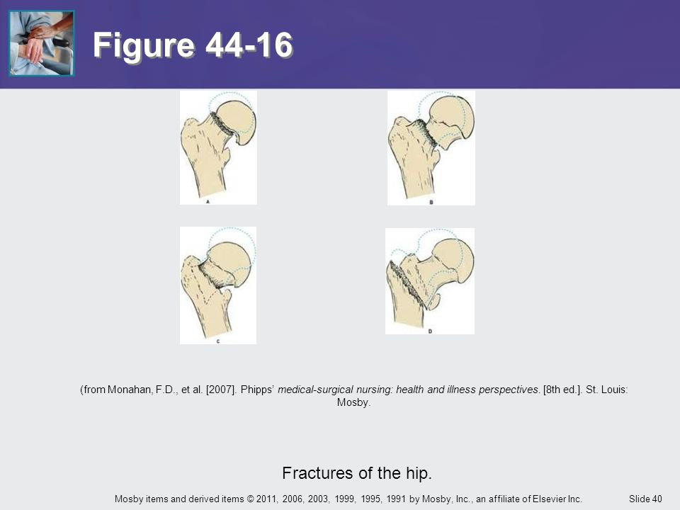 Slide 40Mosby items and derived items © 2011, 2006, 2003, 1999, 1995, 1991 by Mosby, Inc., an affiliate of Elsevier Inc. Figure 44-16 Fractures of the