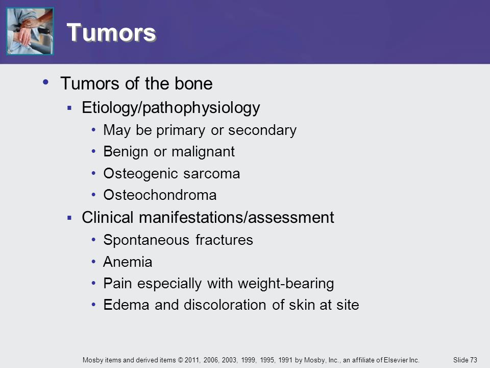 Slide 73Mosby items and derived items © 2011, 2006, 2003, 1999, 1995, 1991 by Mosby, Inc., an affiliate of Elsevier Inc. Tumors Tumors of the bone  E