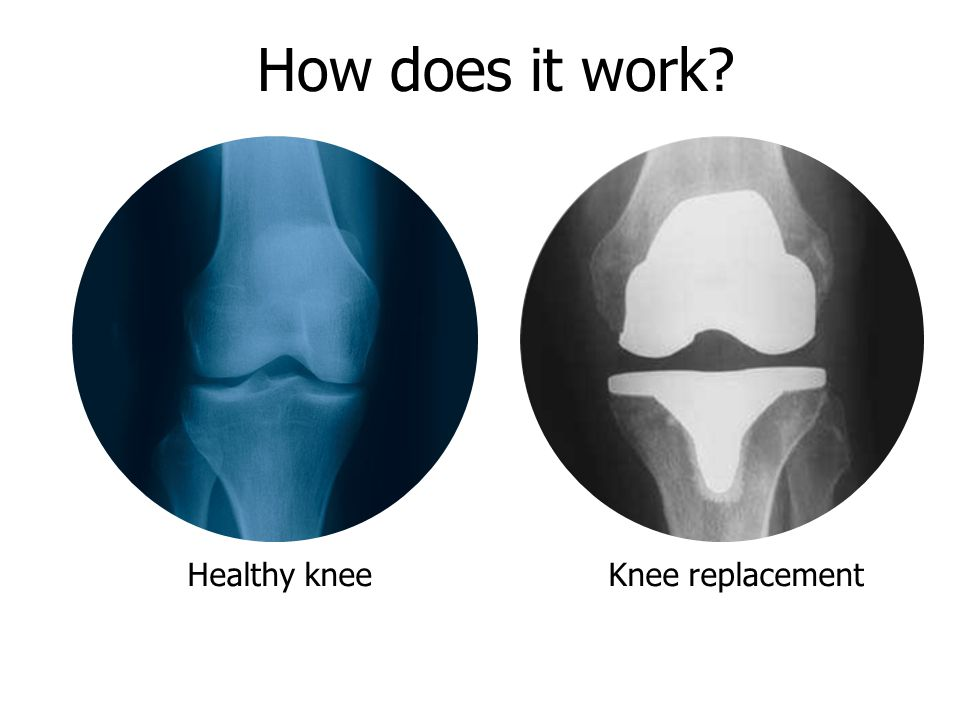 Healthy kneeKnee replacement How does it work