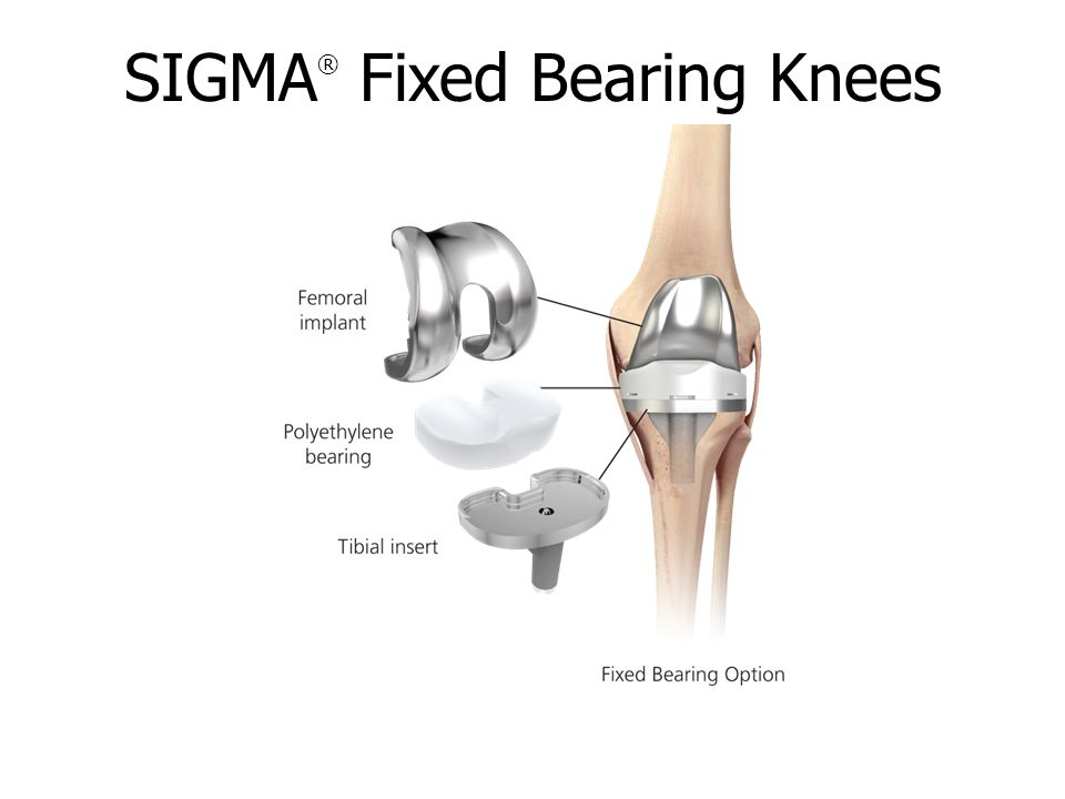SIGMA ® Fixed Bearing Knees