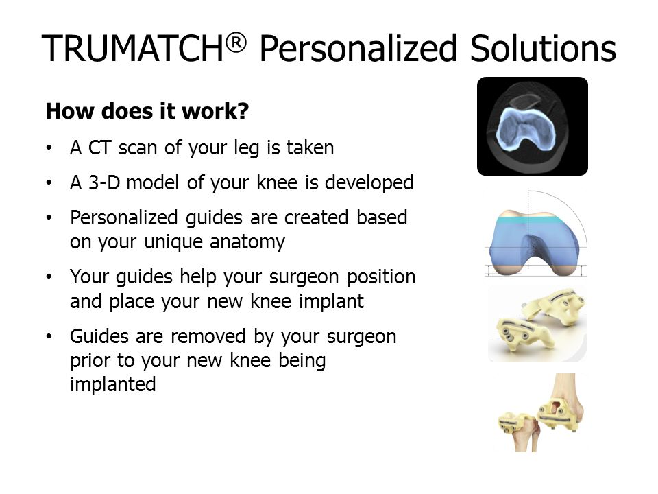 TRUMATCH ® Personalized Solutions How does it work.